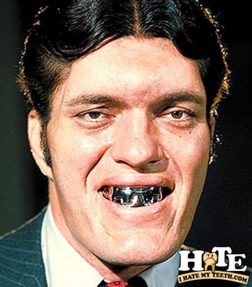 The Worst Teeth Ever (31 pics)
