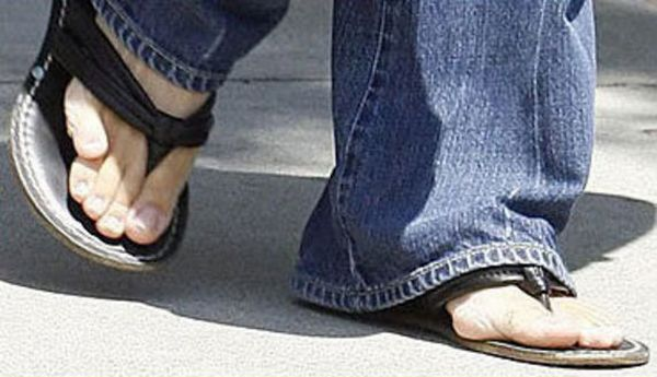Celebrities With Ugly Feet (21 pics)