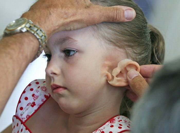 New Ear for a Little Girl (12 pics)