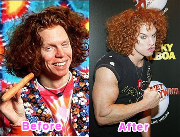 Celebrity Plastic Surgery Disasters. Before And After (16 pics)