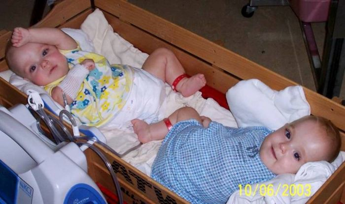 New Life of Conjoined Twins (13 pics)