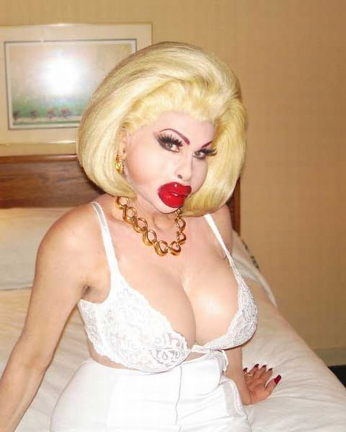 Girls With Silicone Lips. Part 2 (40 pics)