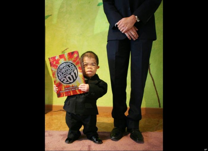 World's Shortest Man (11 pics + video)