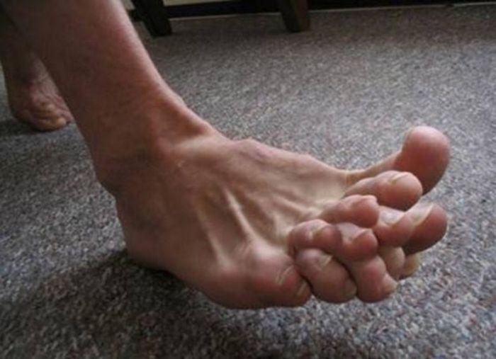Ini adalah gambar kaki yang mempunyai jari kaki yang banyak :))