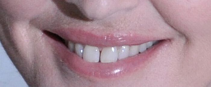 Guess the Celebrity Smile (20 pics)