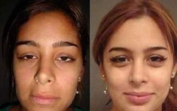 Larissa Riquelme Before and After Plastic Surgeries (9 pics)