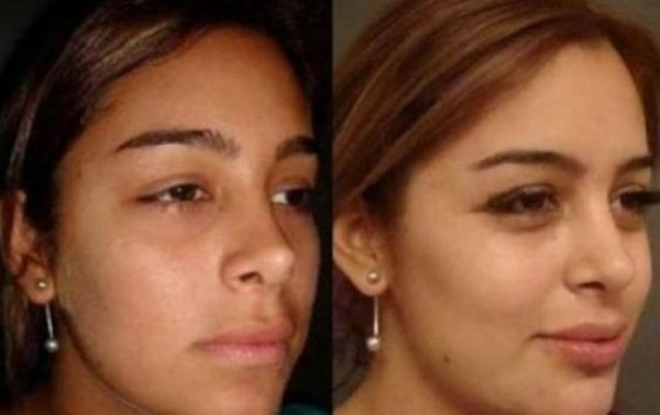 Larissa Riquelme Before and After Plastic Surgeries (9 pics)
