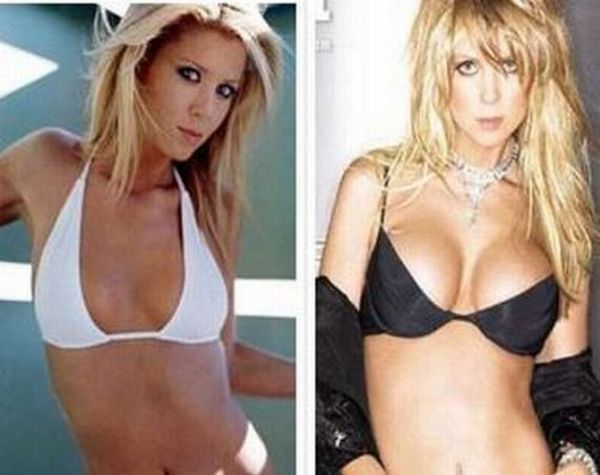 Celebrities Before and After Breast Enlargement (10 pics)