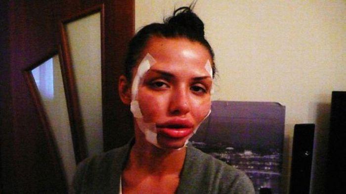 Another Victim of Plastic Surgeons (13 pics)