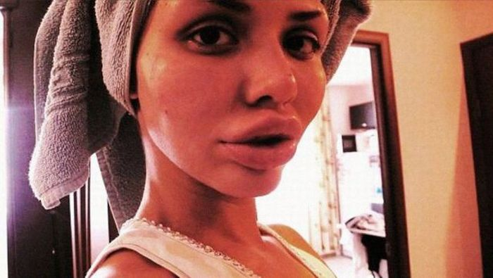 Another Victim of Plastic Surgeons (13 pics)