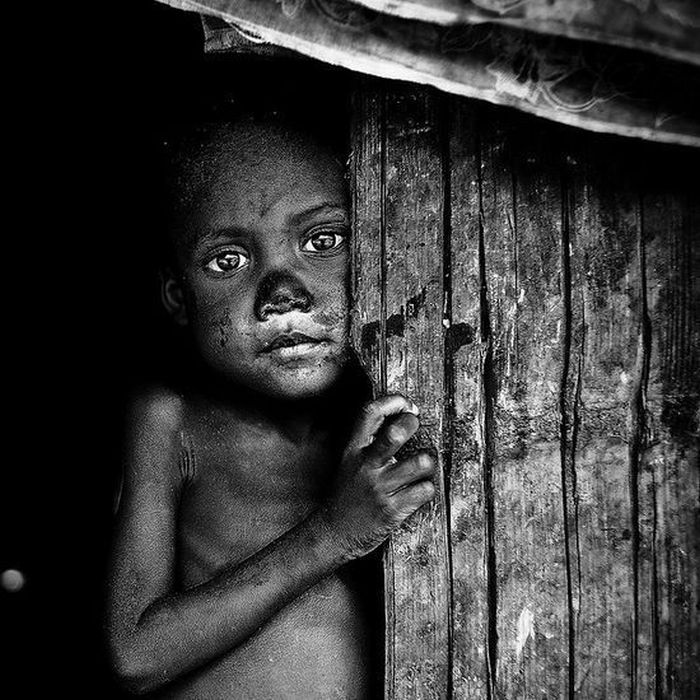 faces of poverty 33 pics
