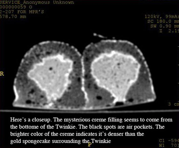 A Twinkie in a CT Scanner (6 pics)