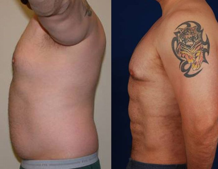 Surgery for a Six-Pack (7 pics)