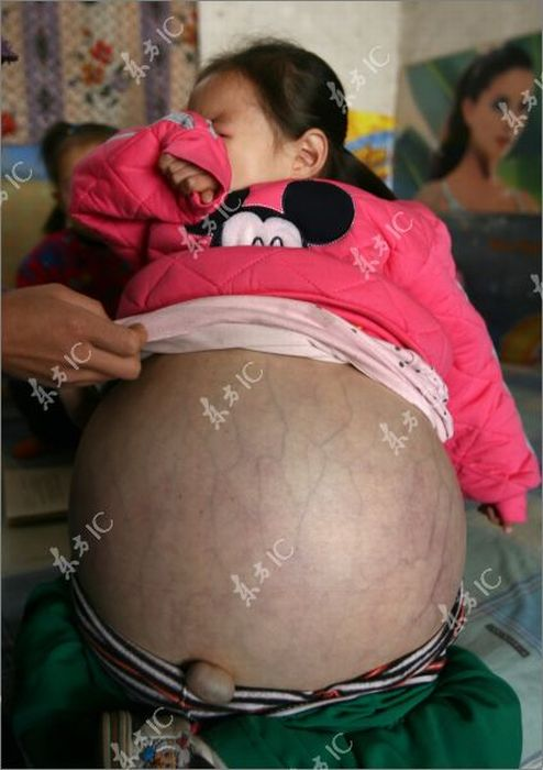 4-Year-Old Girl with Giant Abdomen (19 pics)