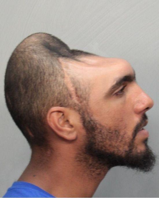 Half a Head (4 pics)