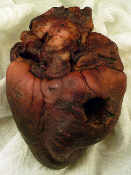 Mummified Vampire Heart is for Sale on Ebay (7 pics)
