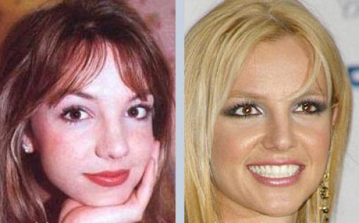 Nose Surgery (36 pics)