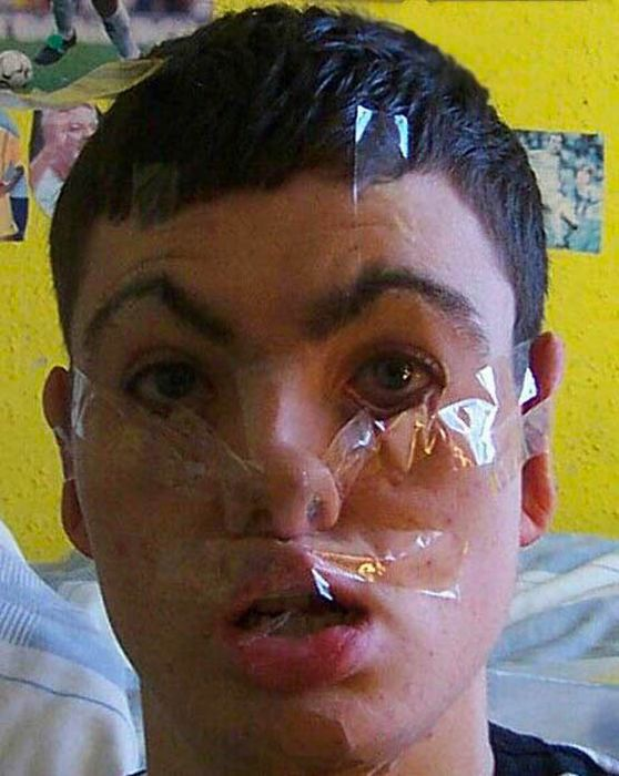 Funny Tape Face Photos (42 pics)