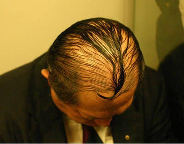 Funniest Comb-Overs (15 pics)
