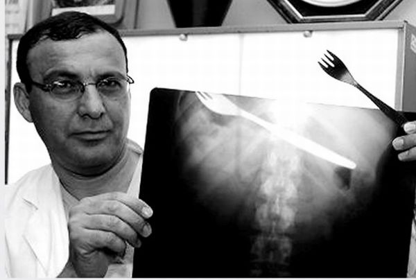 The Strangest Things in Human X-Rays (20 pics)