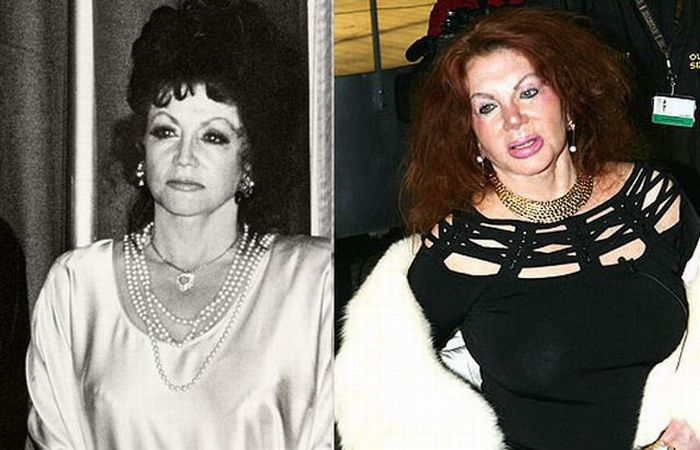 Stallone's mom, Jackie, after Zillions of Plastic Ops (29 pics)