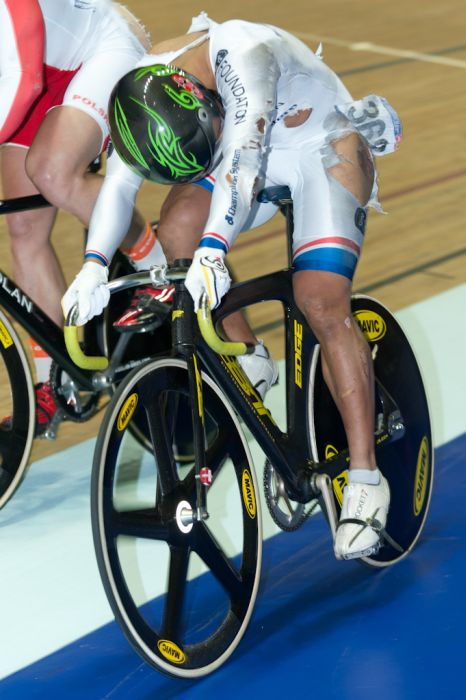 Azizulhasni Awang Finishes Track Race with Splinter Through Leg (10 pics + video)