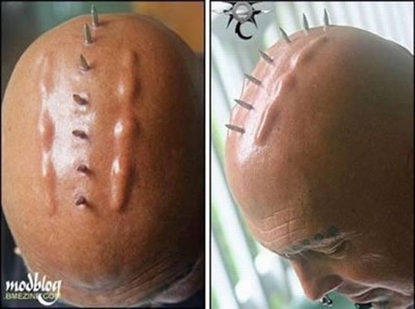 Most Bizarre Body Implants (12 pics)