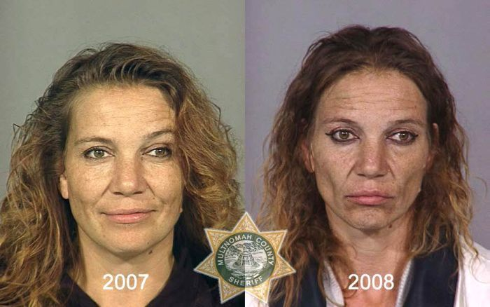 Faces of Meth (22 pics)