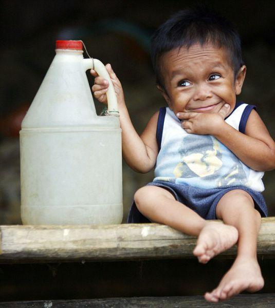Junrey Balawing - World's Smallest Man (13 pics)