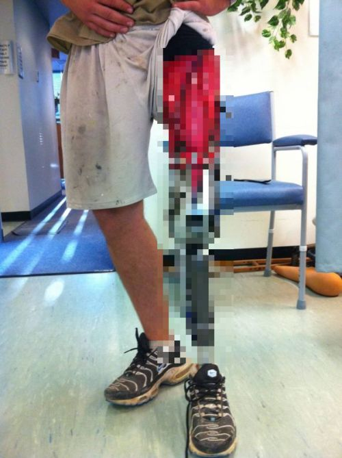 Awesome Prosthetic Leg (7 pics)