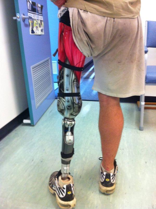 Awesome Prosthetic Leg (7 pics)