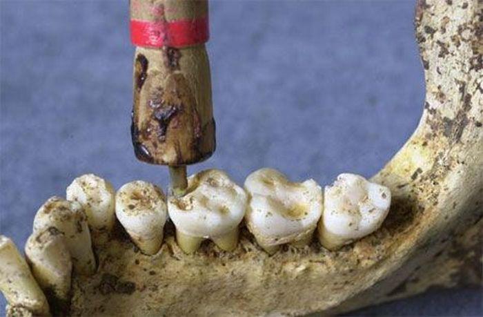 Dentist Tools of the Past (15 pics)