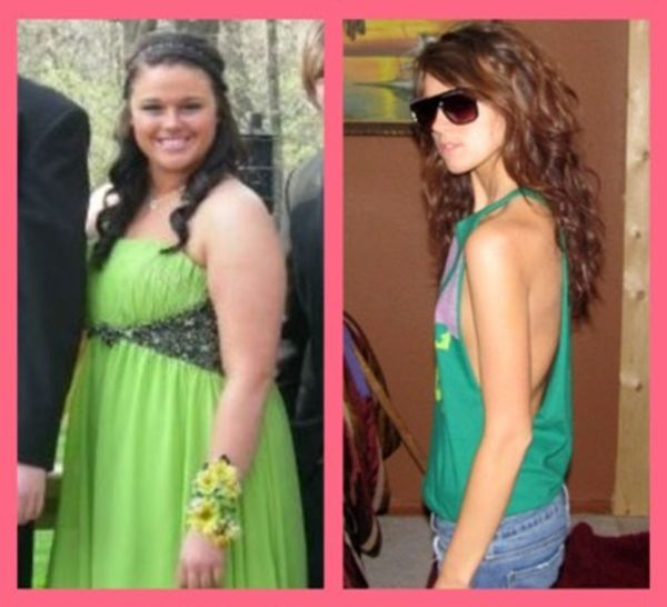 Extreme Weight Loss (10 pics)
