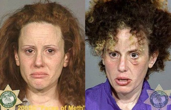 Faces of Meth. Part 2 (38 pics)