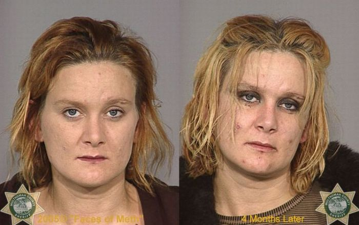 Meth Before And After Pictures to Pin on Pinterest - PinsDaddy