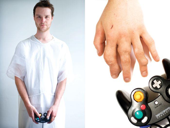 Game Arthritis (9 pics)