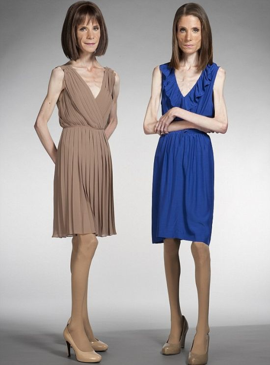 Twin Sisters with Anorexia (4 pics)
