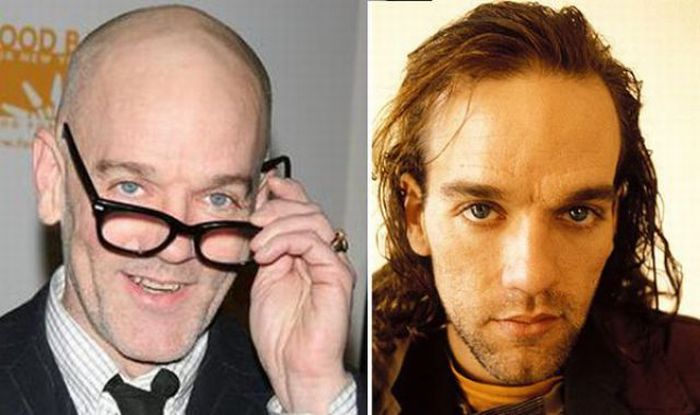 Celebrities Who Lost Their Hair (31 pics)
