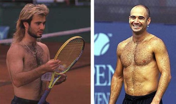 celebrities who lost their hair 31 pics