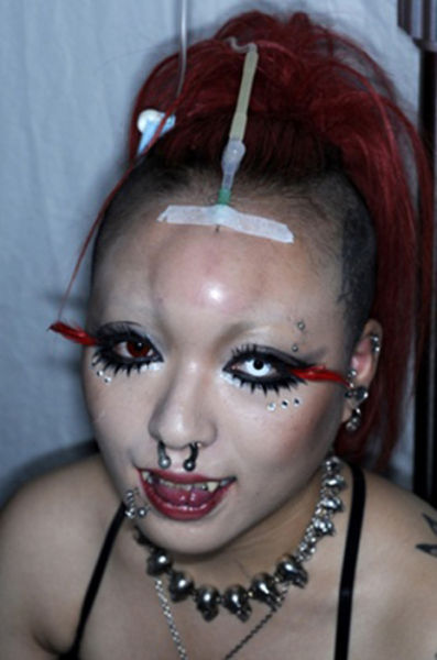 Saline Forehead Injections (8 pics)