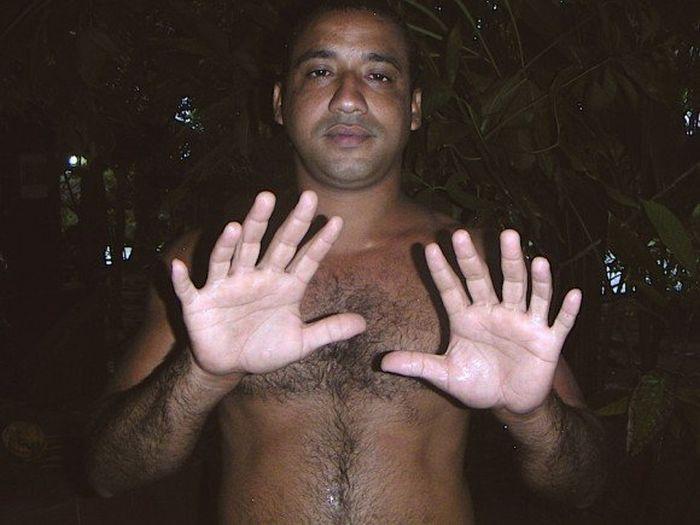 Cuban Man Who Has 24 Fingers (2 pics)