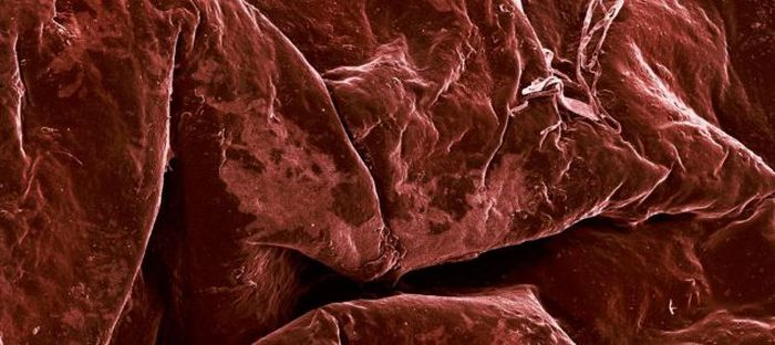 Food Under the Microscope (19 pics)