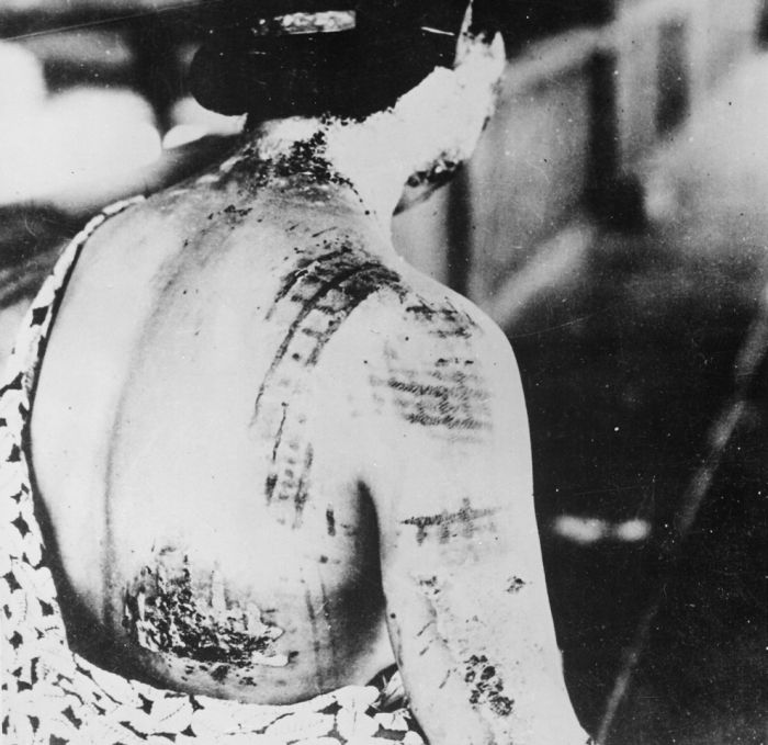 Atomic Bombing of Hiroshima (34 pics)