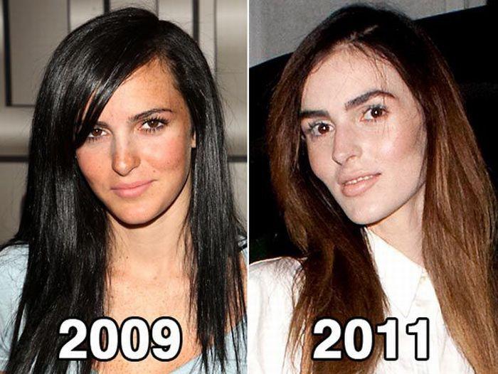 Scaring New Face of Lindsay Lohan's Sister Ali Lohan (8 pics)