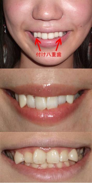 Girl with Vampire Teeth (15 pics )