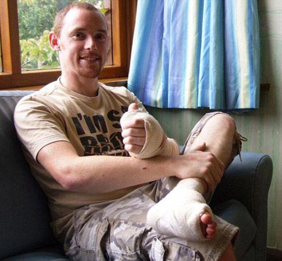 Big Toe Transplantation (3 pics)