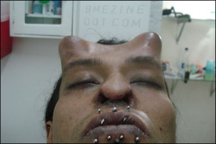Very Scary Body Modification (8 pics)