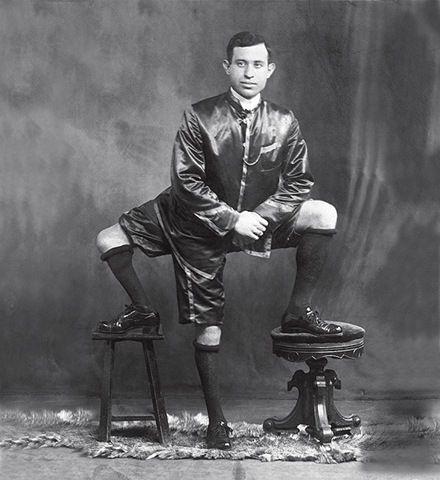Francesco Lentini, a Man with Three Legs (5 pics)