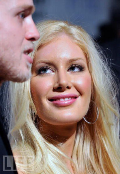 Celebrities Before & After Plastic Surgery (45 pics)