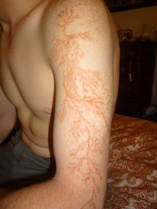 Lichtenberg Figure. Human Skin Struck by Lightning (4 pics)